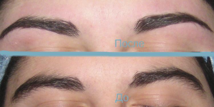 Как сделать чтобы волосы не росли между бровями